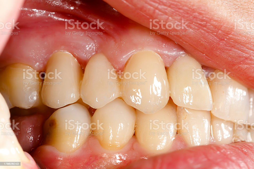 Pressed ceramic teeth in oral cavity royalty-free stock photo