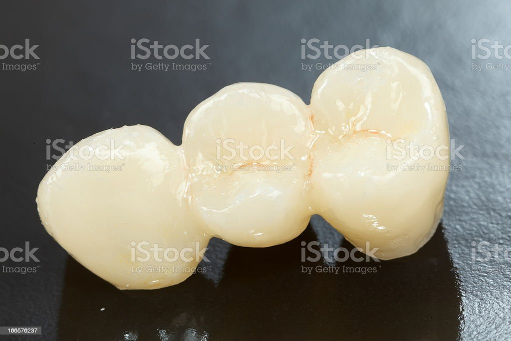 Pressed ceramic teeth royalty-free stock photo