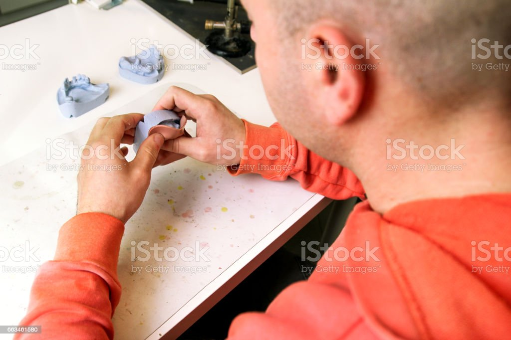 Pressing of Shellac base plates. Dentures. Dental prosthesis, dentures, prosthetics work. Dental technician in process of making dentures. Pressing of Shellac base plates over the plaster model. stock photo