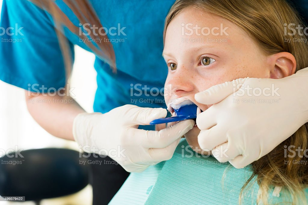 Preteen girl gets a dental impression for braces stock photo