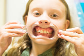 Preteen girl shows her crooked teeth