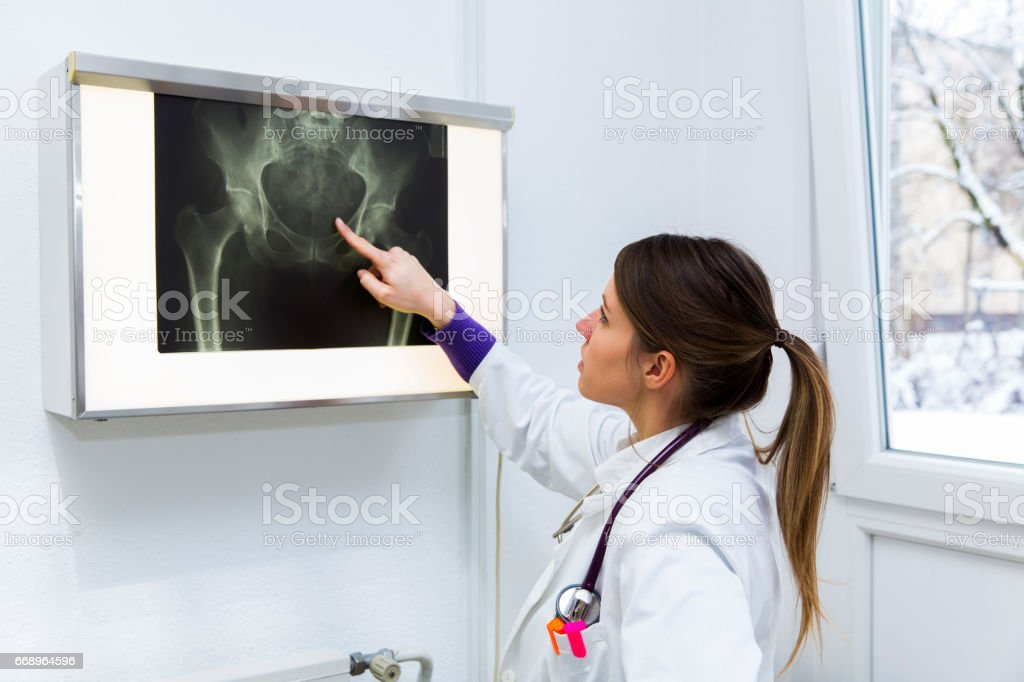 Pretty young woman doctor watching x-ray image of human pelvis.... stock photo