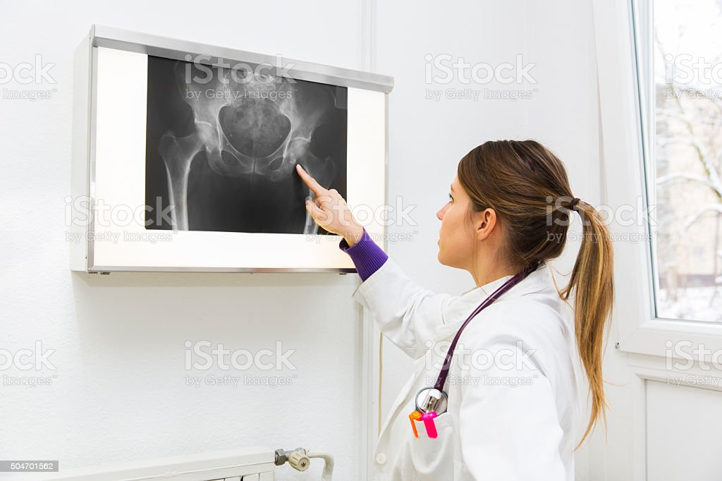 Pretty young woman doctor watching x-ray image stock photo