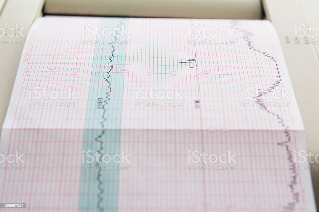 Printing of cardiogram report coming out from Electrocardiograph in labour stock photo