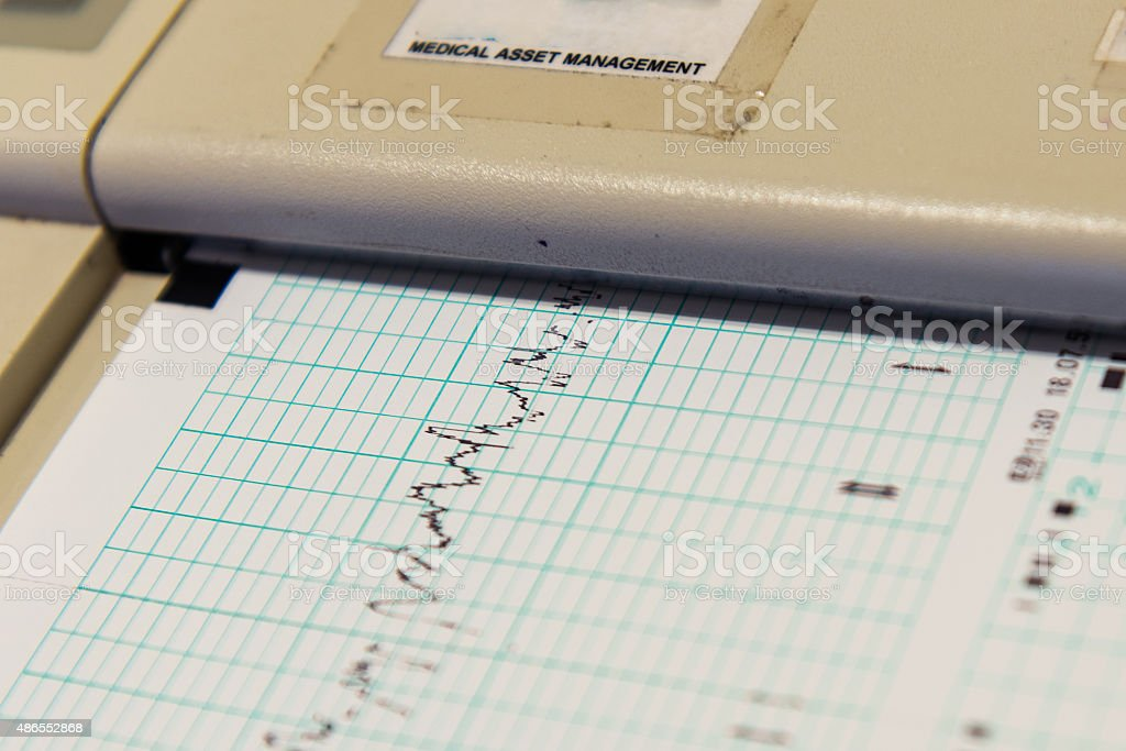 Printing of cardiogram report coming out from Electrocardiograph. Richter scale. stock photo