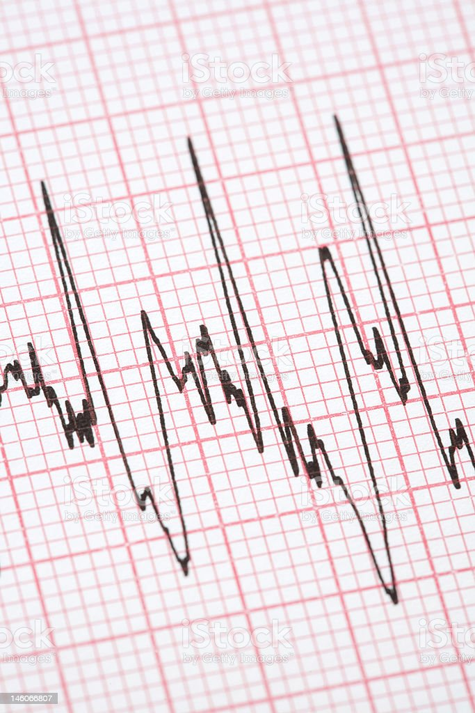 Printout from cardiograph royalty-free stock photo