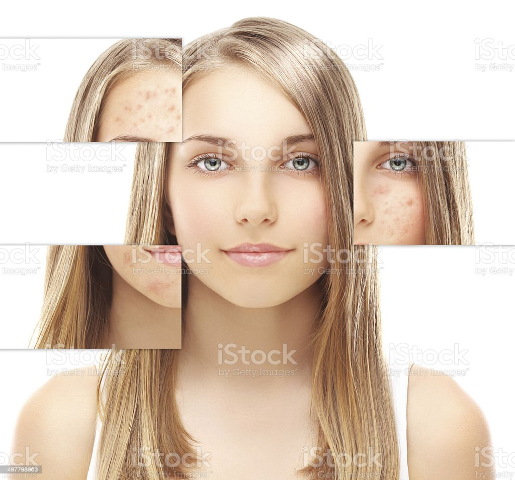Problem skin, acne stock photo