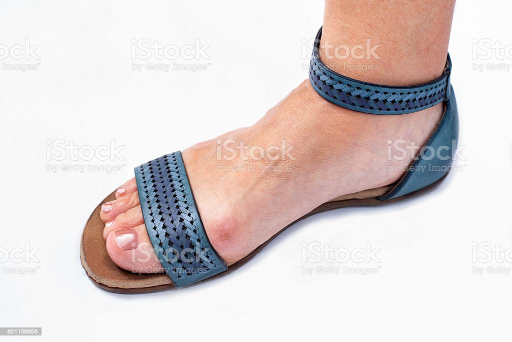 Problem with bunions and footwear stock photo