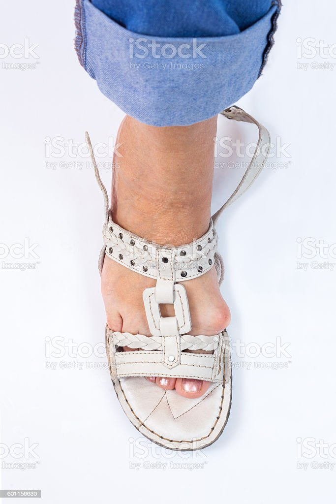Problem with bunions and summer shoes stock photo