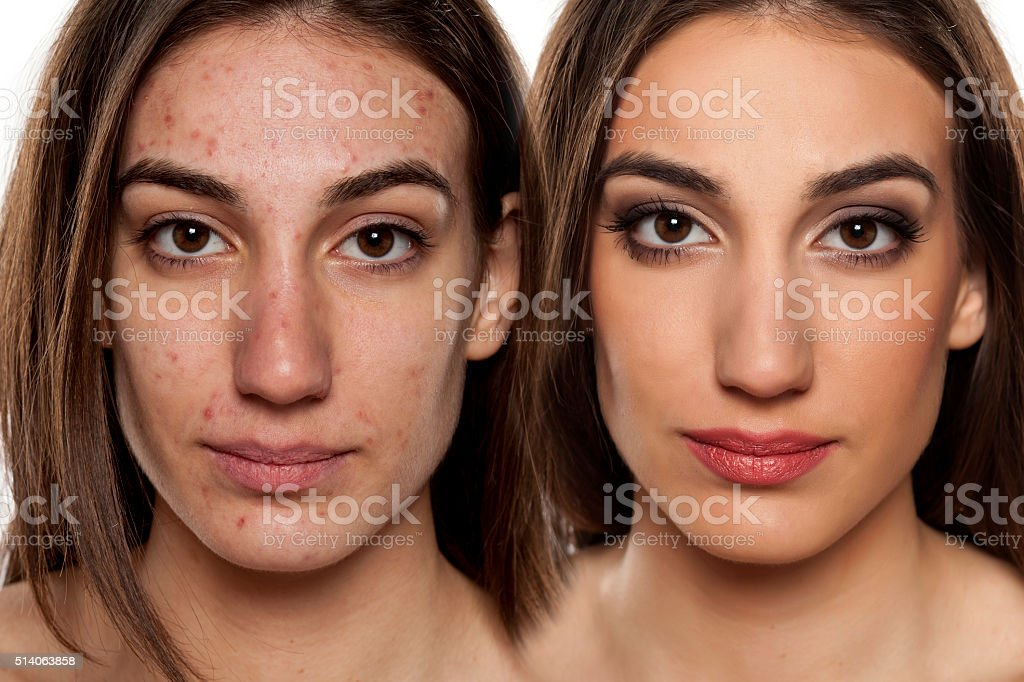 problematic skin before and after makeup stock photo