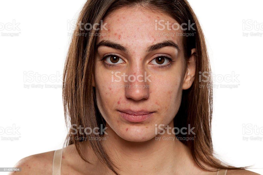 problematic skin stock photo