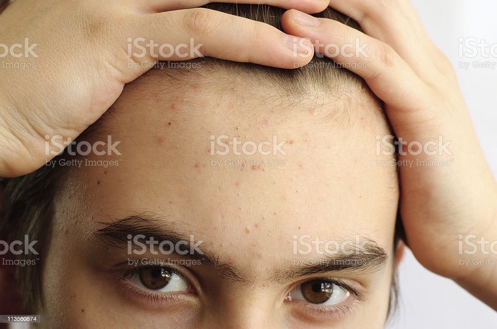 Problems with the skin royalty-free stock photo