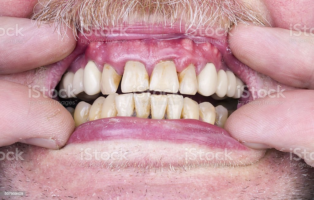 Problems with the teeth and gums stock photo