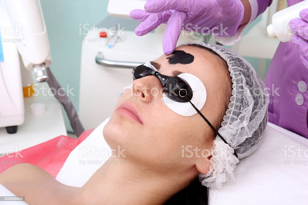 Procedure carbon peeling. royalty-free stock photo