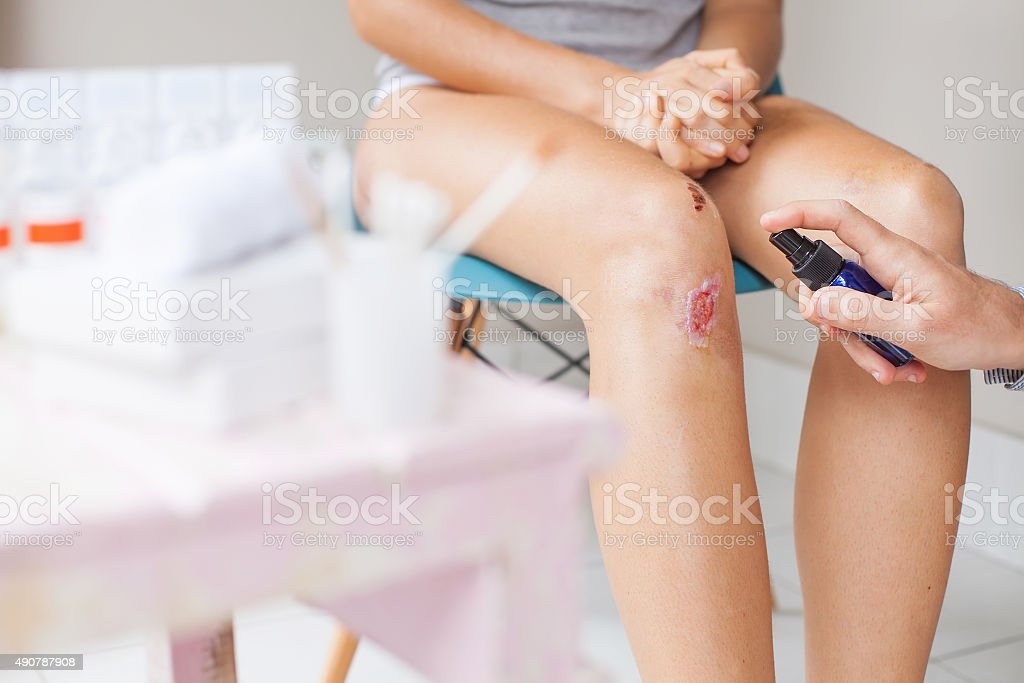 procedure of treatment damaged knees stock photo