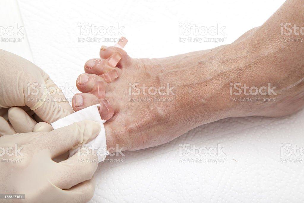 Process of foot nail varnishing stock photo