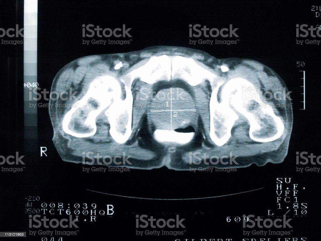 Prostate Cancer Cross Section royalty-free stock photo