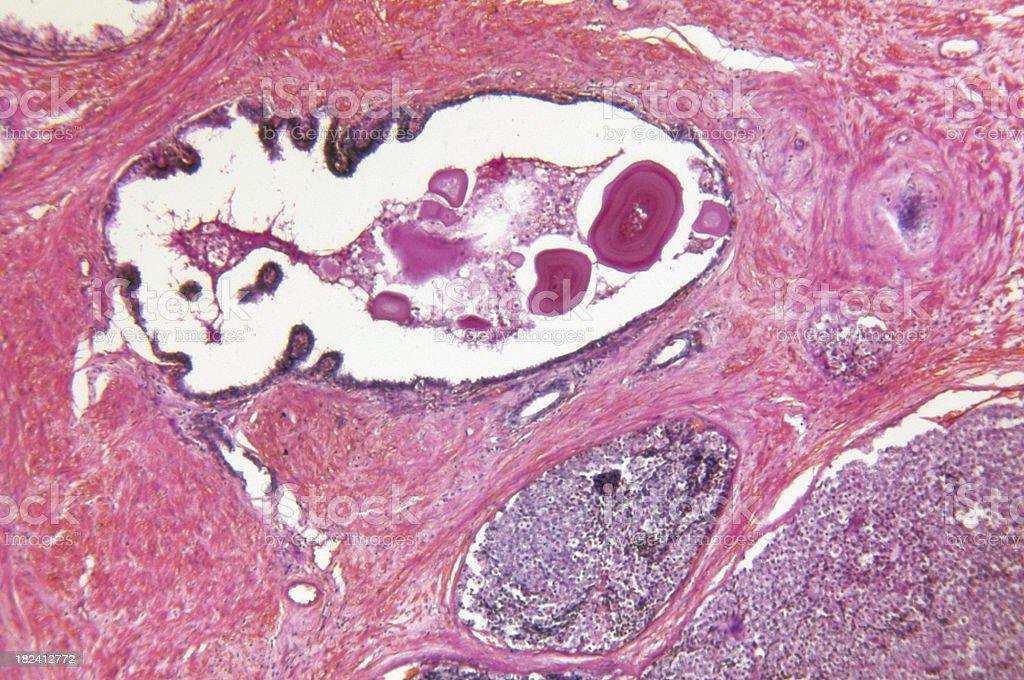 Prostate Gland Adenocarcinoma stock photo