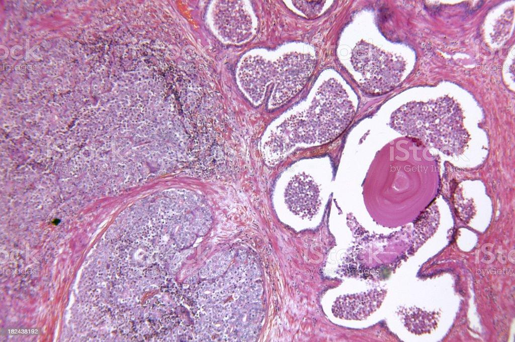 A prostate gland adenocarcinoma stock photo