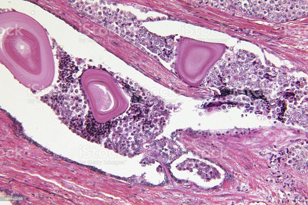 Prostate Gland Adenocarcinoma royalty-free stock photo