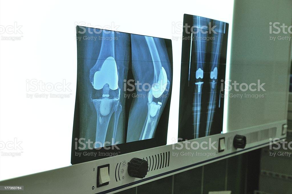 Prosthesis of the knee xray royalty-free stock photo