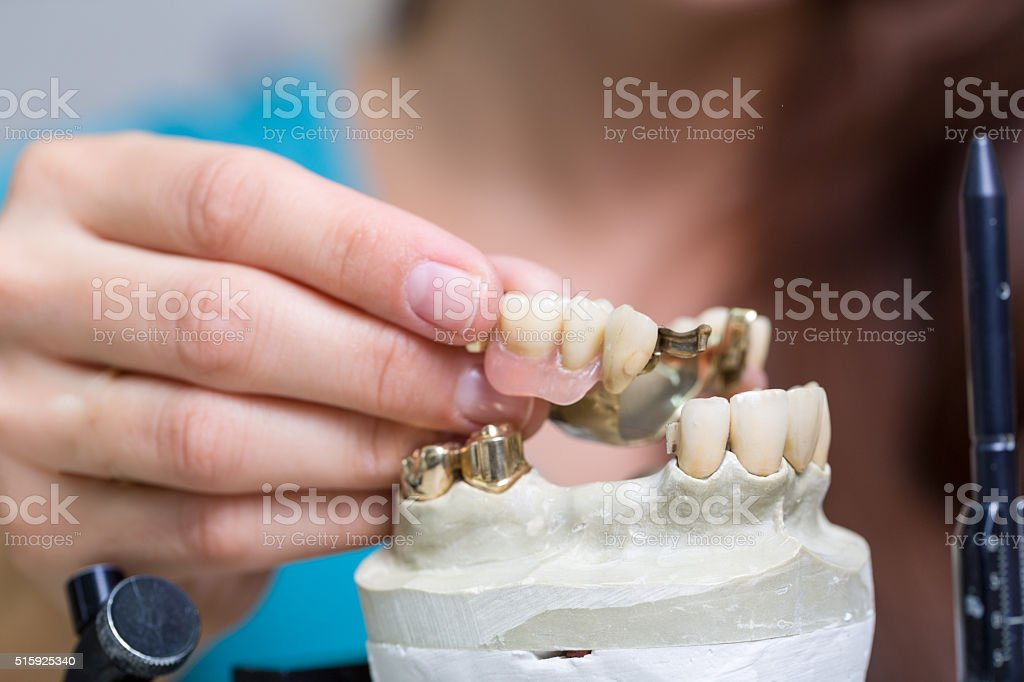 prosthesis saddle in a dental laboratory stock photo