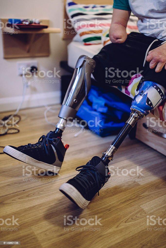 Prosthetic Legs stock photo