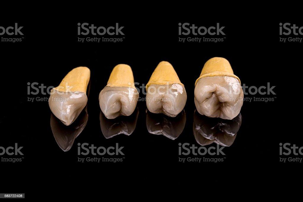Prosthetic teeth stock photo
