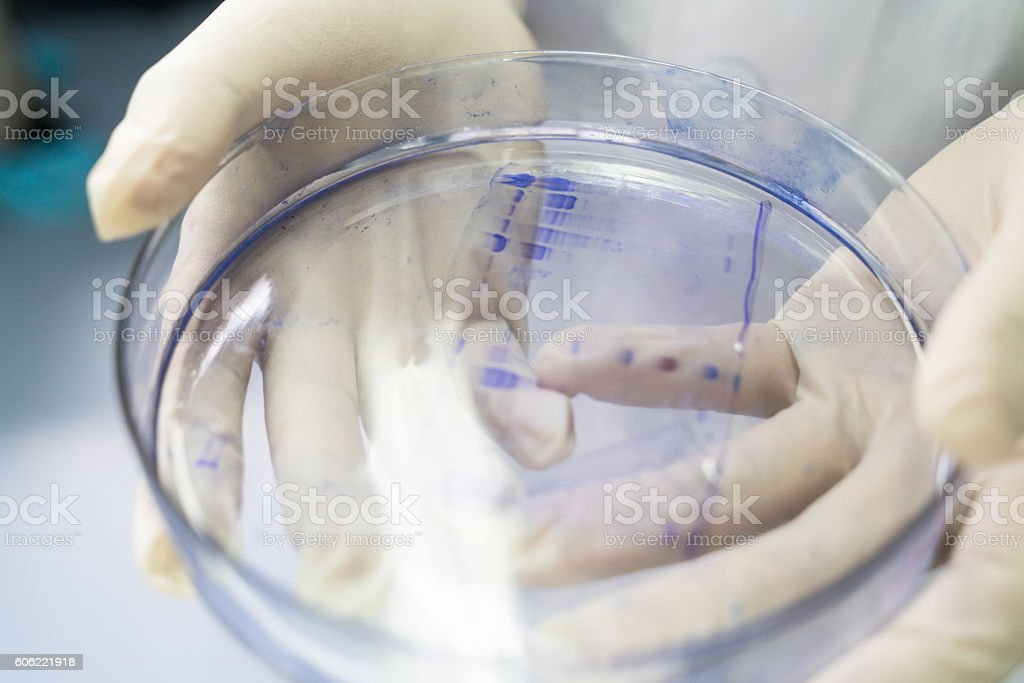 protein run on SDS-PAGE gel stock photo