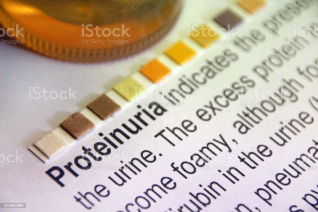 Protein Urinalysis stock photo