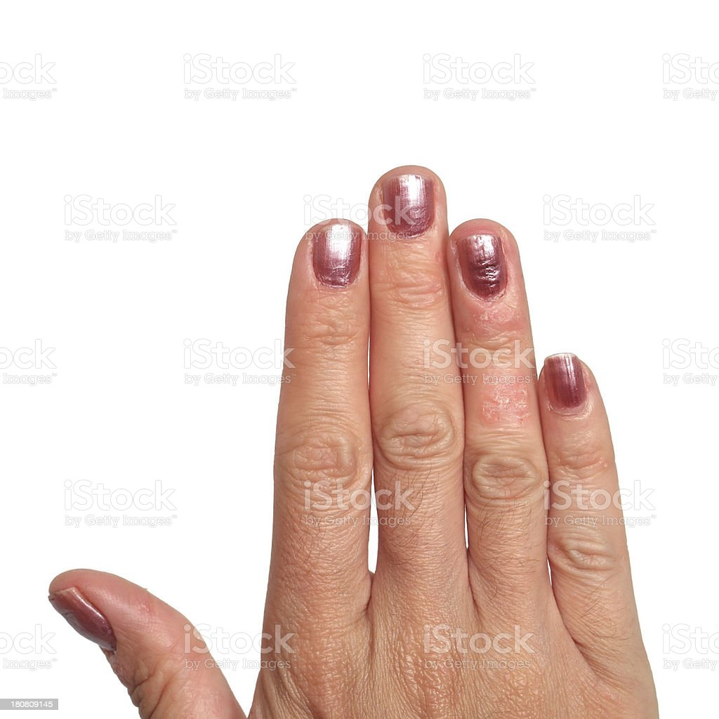 Psoriasis Hand royalty-free stock photo