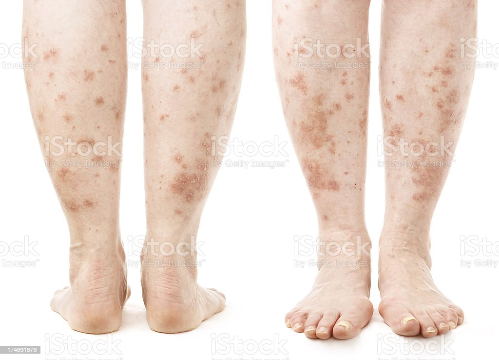 Psoriasis - Legs (front and back view) stock photo