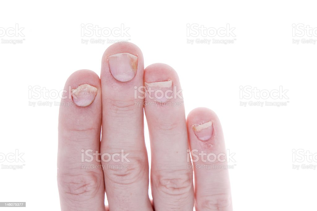 Psoriasis of the fingernails against a white background  stock photo