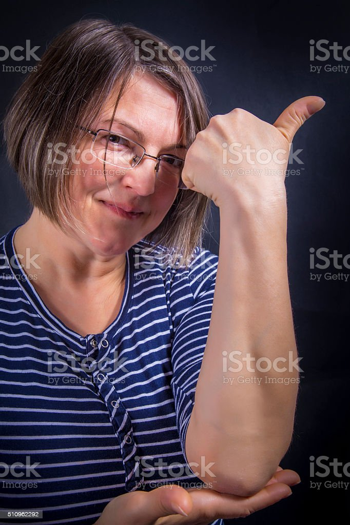 Psoriasis on elbow royalty-free stock photo