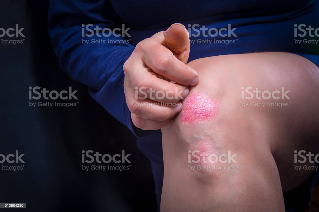 Psoriasis on knee royalty-free stock photo