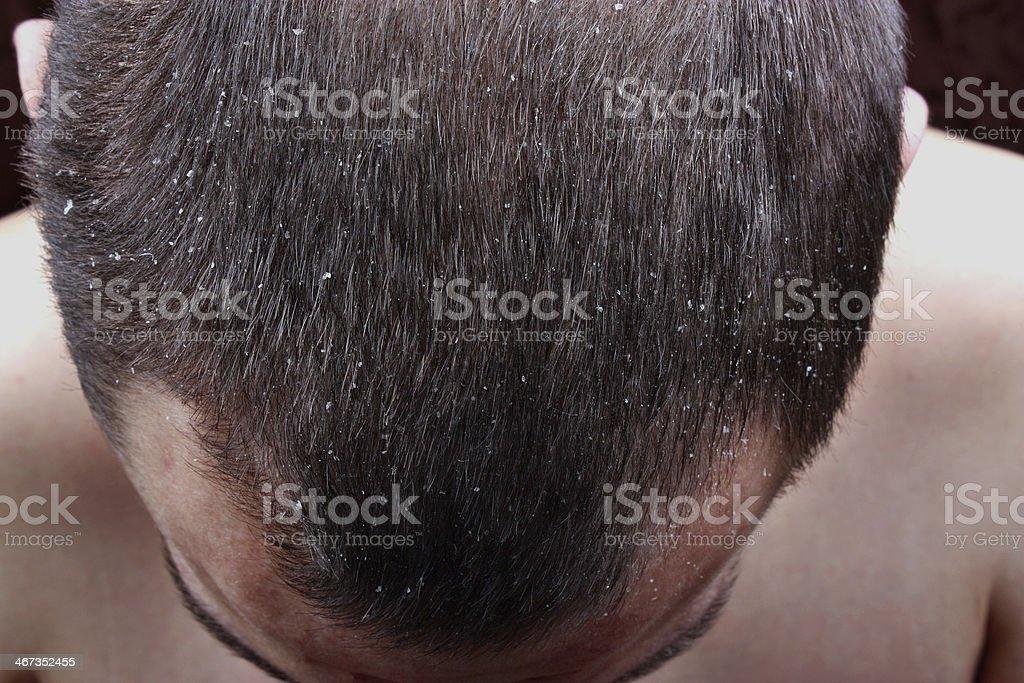 Psoriasis skin stock photo