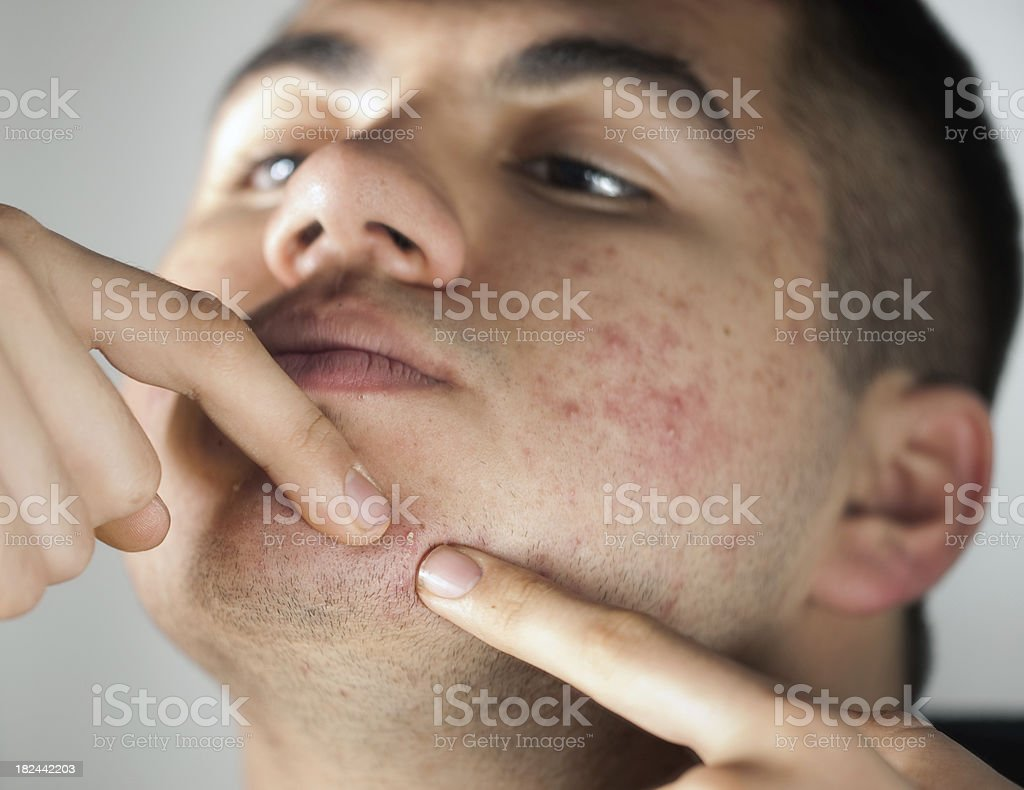 Puberty age and Pimples stock photo