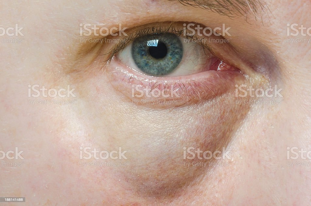 Puffy swollen eye stock photo