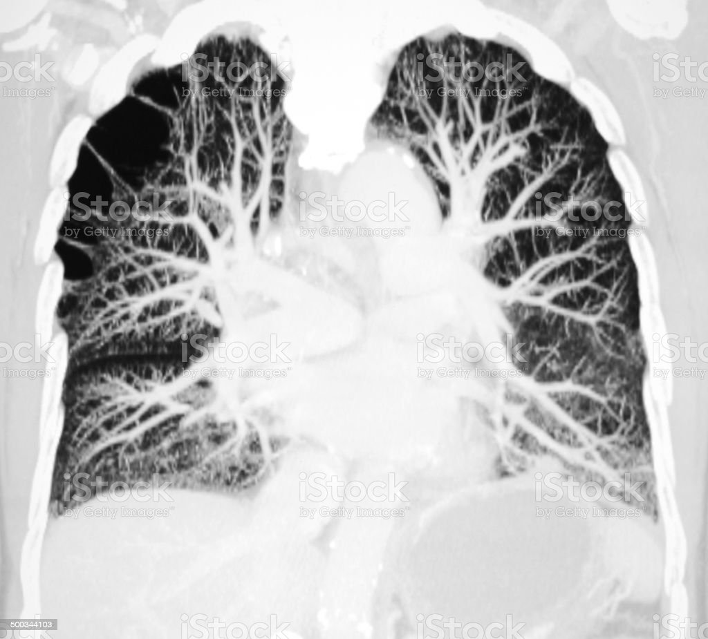 pulmonary artery CT image stock photo