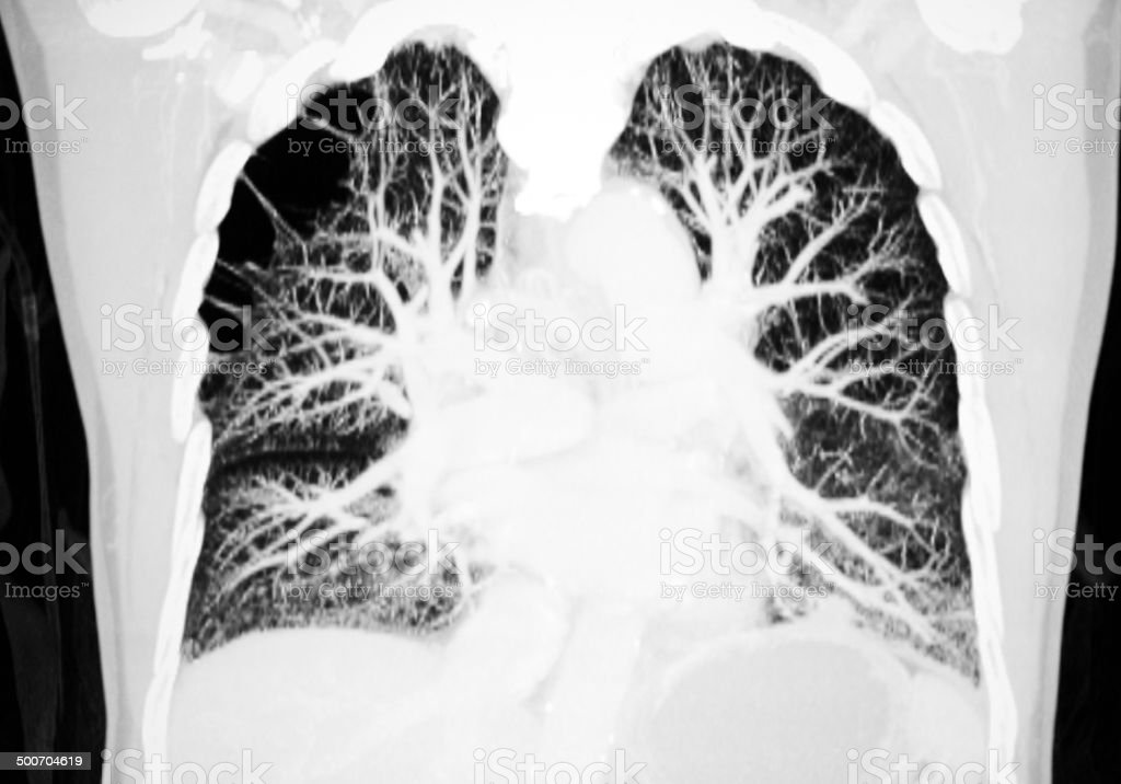 pulmonary artery CT image stock photo