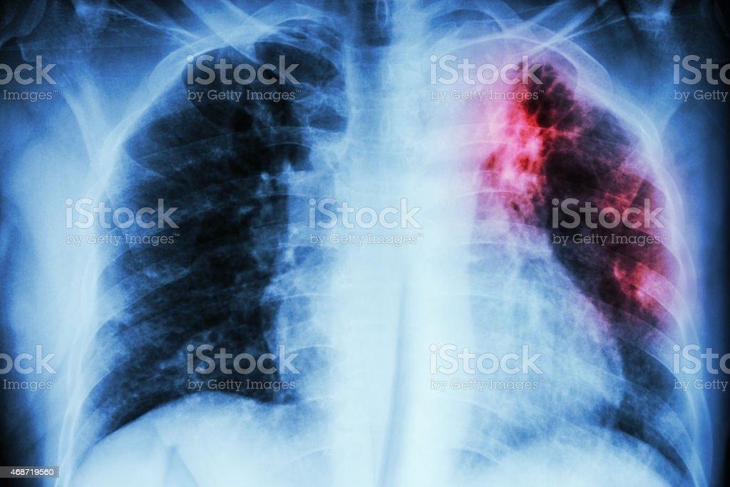 Pulmonary Tuberculosis stock photo