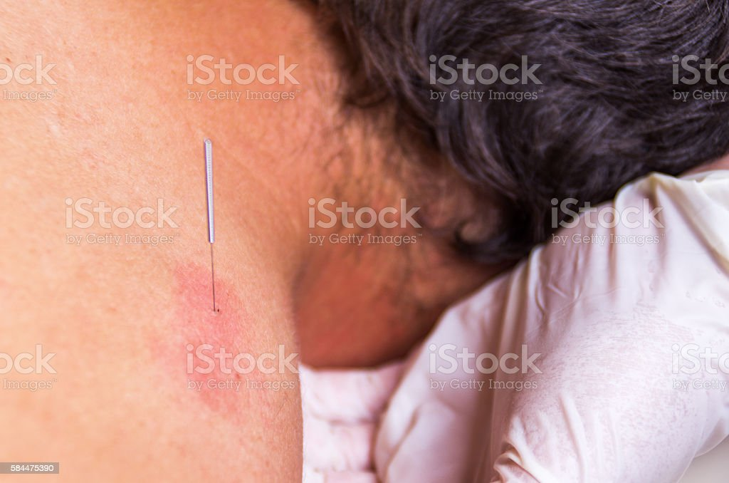 puncion seca dry needling acupunture fisio therapy red horizontal stock photo