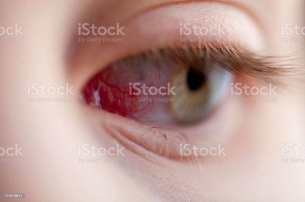 Puncture injury of eye royalty-free stock photo