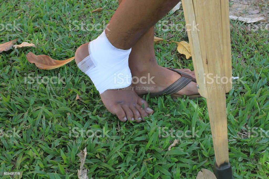 Put an elasticated compression bandage over  ankle stock photo