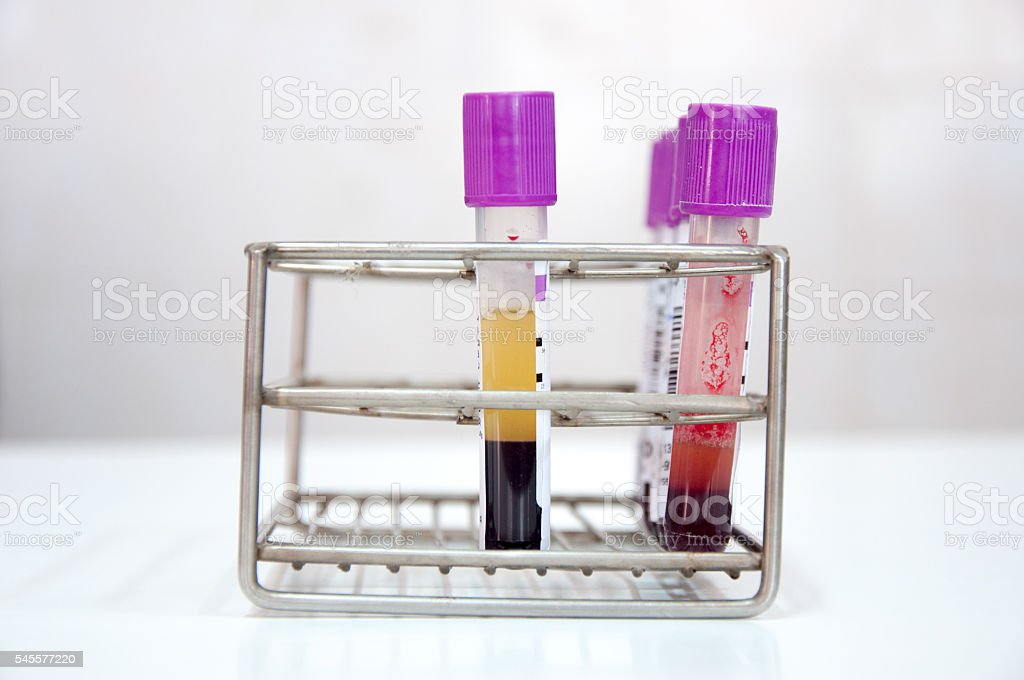 rack with blood tubes stock photo