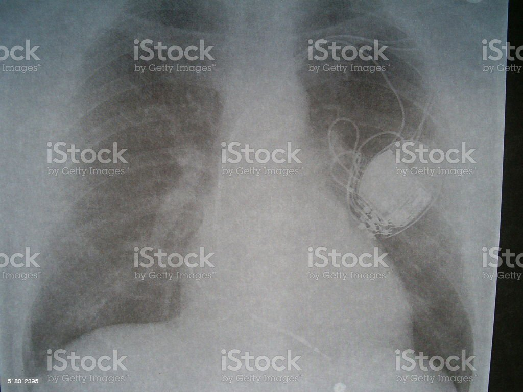 Radiograph, chest, heart pacemaker stock photo