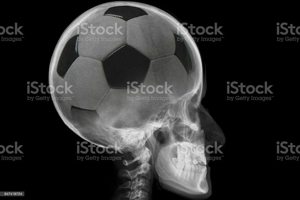 Radiography of skull stock photo