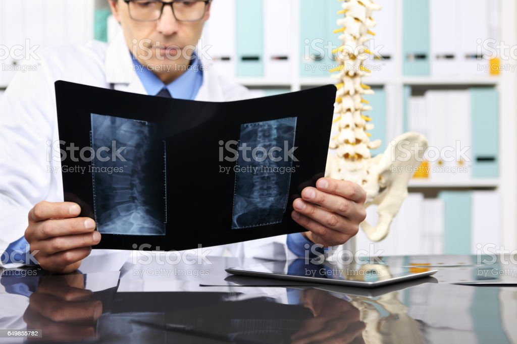 Radiologist doctor checking xray, healthcare, medical and radiology concept stock photo