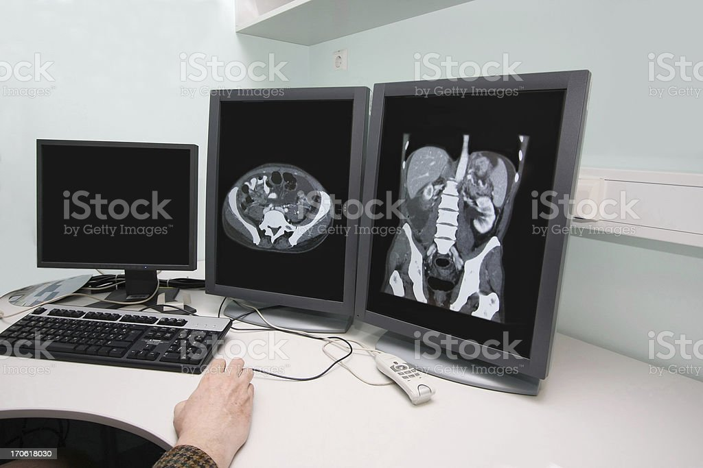 Radiologist examining CAT scan pictures on monitor royalty-free stock photo