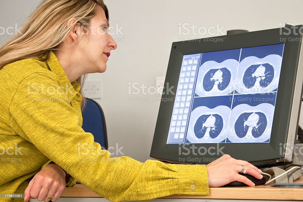 Radiologist reporting digital CT chest scans on computer royalty-free stock photo